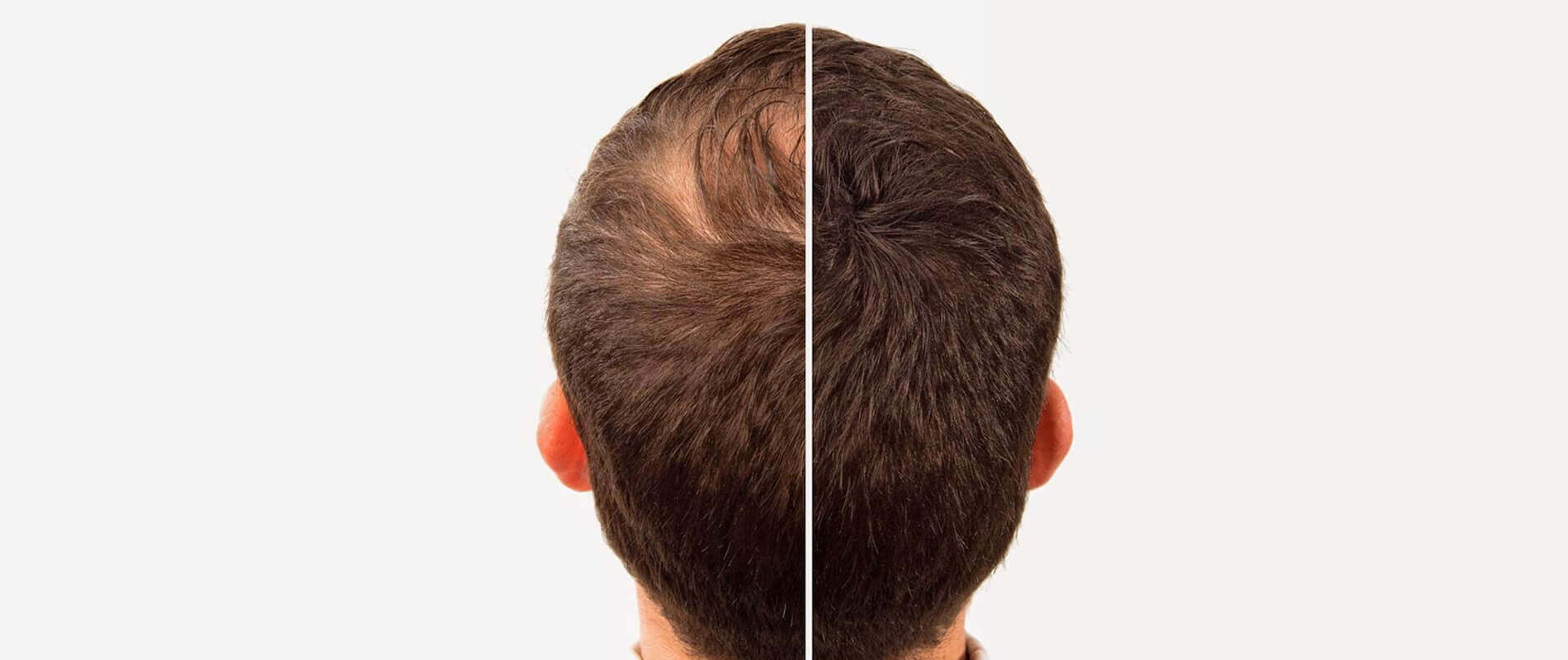 Hair transplantation clinic in hyderabad
