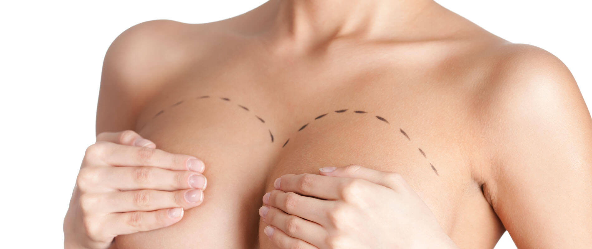 Breast Surgery Clinic in Hyderabad